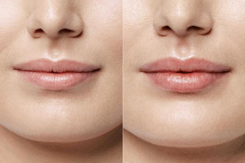 Увеличение губ рестилайном отзывы