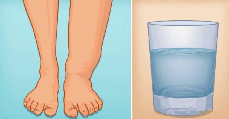 Никаких отеков! Как избавиться от лишней воды в организме