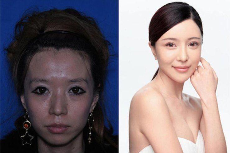 Азиатки с пластической операцией