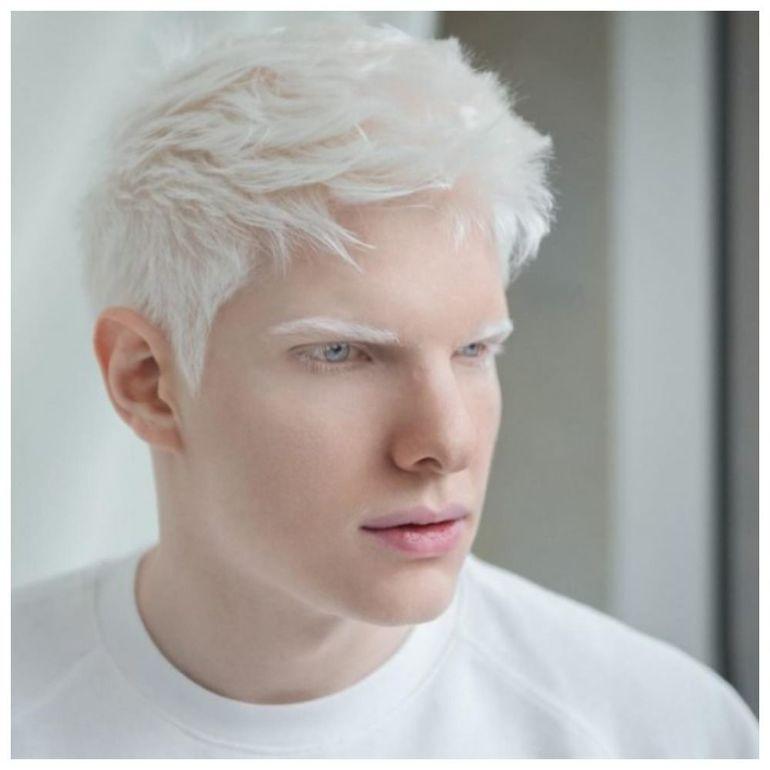 модели альбиносы