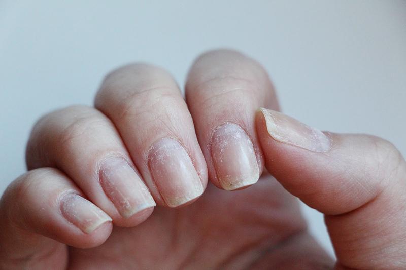 Польза шеллака для ногтей